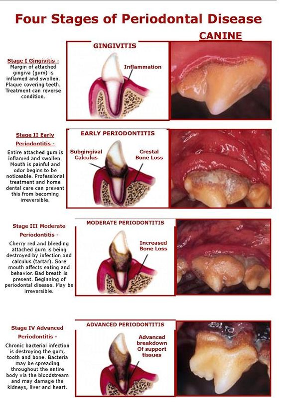 Chart showing stages of canine dental disease