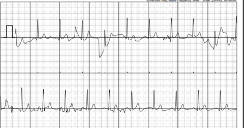 An Electrocardiogram tracing, an ECG