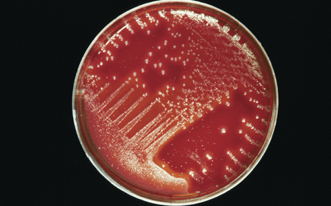 Petri dish with red agar and white bacterial colonies.